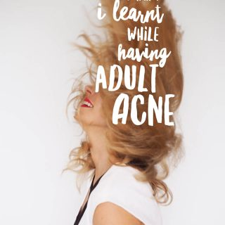 9 things I learnt while having adult acne and what worked for me