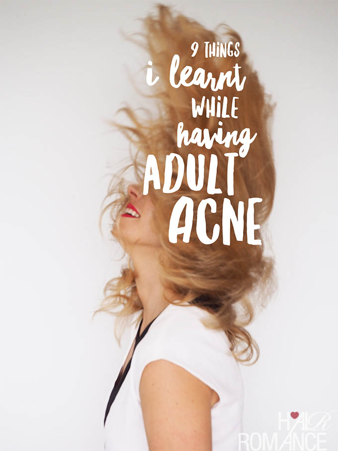 Hair Romance - 9 things I learnt while having adult acne and what worked for me